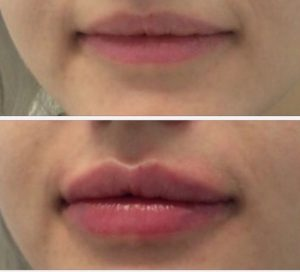 Botox & Lip Filler at Digits Beauty in Bicester, Oxfordshire